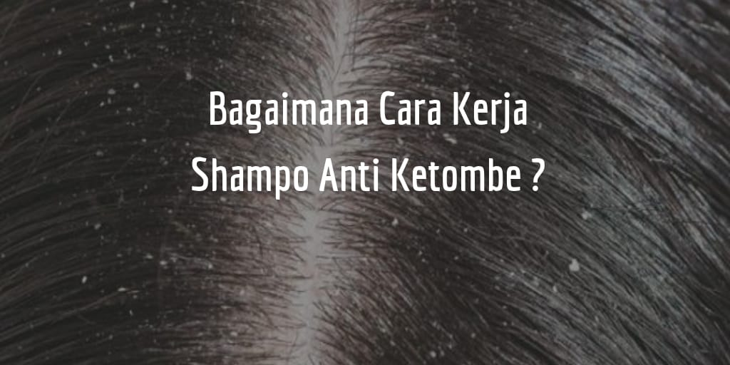 Bagaimana Cara Kerja Shampo Anti Ketombe Terapi Jarum