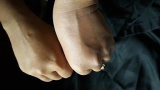 Perbedaan sebelum dan sesudah memakai serum - pemutih- badan di tangan