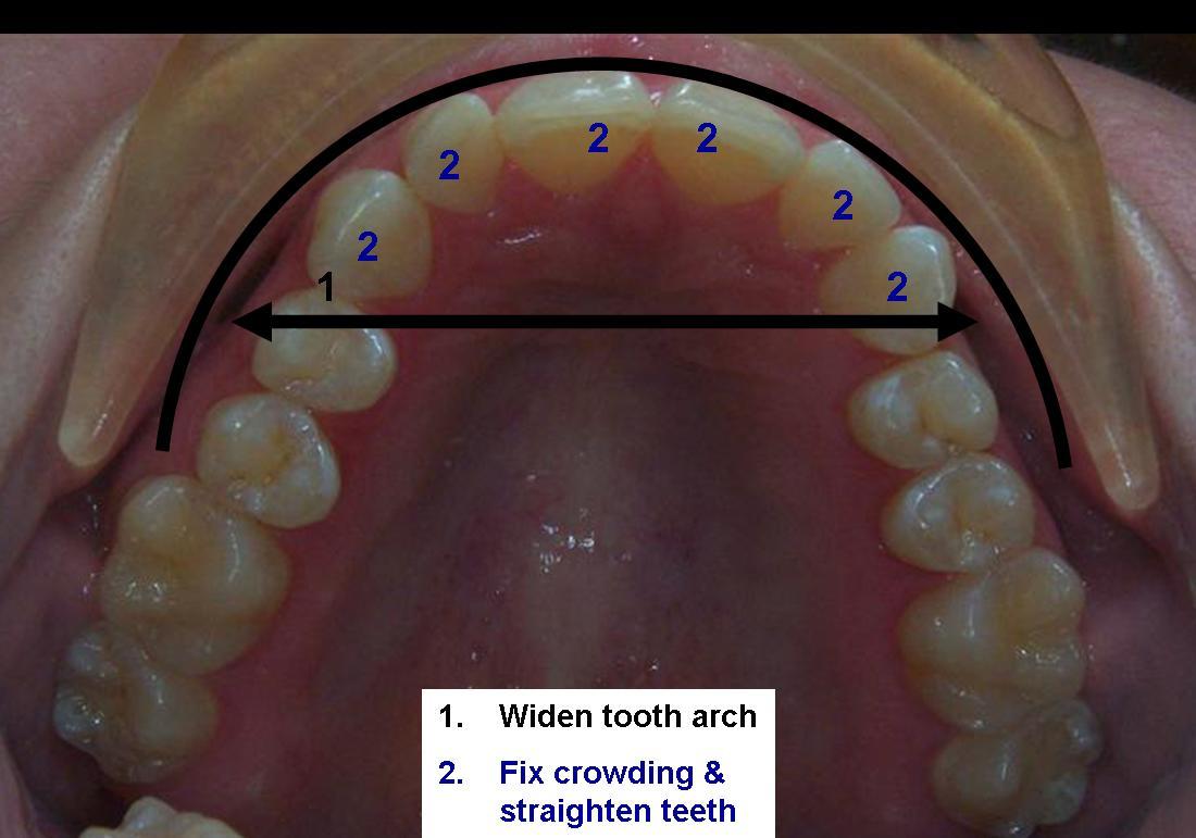 Dr  Keith Harvey  Adult Orthodontics