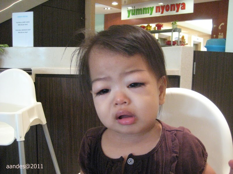 Nephrotic syndrome symptom facial swelling images