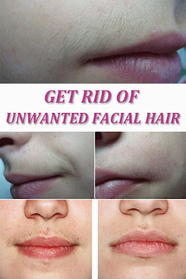 Get Rid of Unwanted Facial Hair