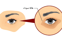 كيفية التخلص من الهالات السوداء تحت العين نهائيا؟
