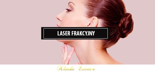 Laser frakcyjny, co to jest i jak działa?