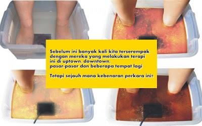 terapi_rendaman_kaki_ion_tipu
