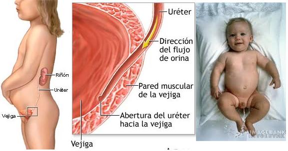 INFECCION URINARIA EN BEBES O NIÑOS
