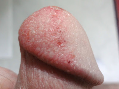 Candidiasis penis apologise, but