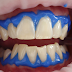 BETTER THAN THE DENTIST: START BRUSHING WITH TURMERIC TOOTHPASTE AND WATCH WHAT HAPPENS TO PLAQUE AND GUM DISEASE