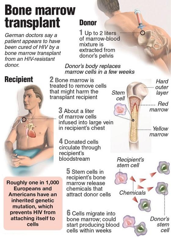 Medical Tourism In India Medi Mantra Healthcare Bone