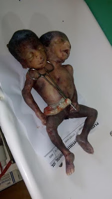 Conjoined twins delivered in hospital in Jos (graphic photos)