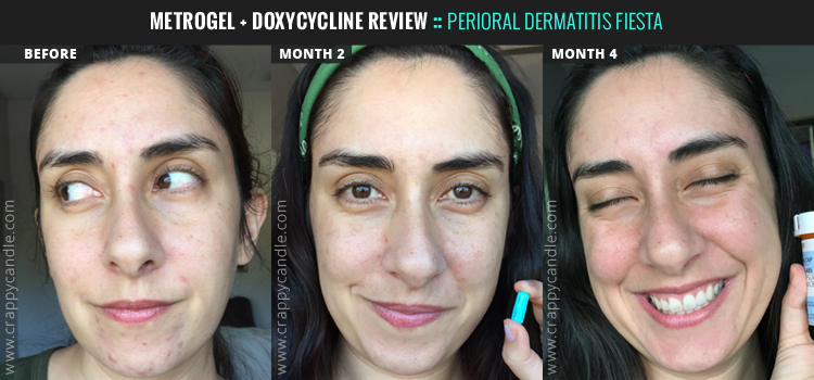 Metronidazole + Doxy Antibiotic Before and After :: Perioral Dermatitis Fiesta