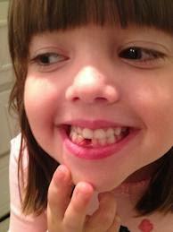ialah salah satu masalah gigi yang cukup mengusik Tekhnik Mencegah Gigi Berlubang