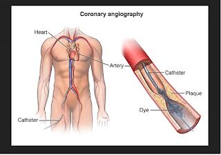 Kateterisasi Jantung