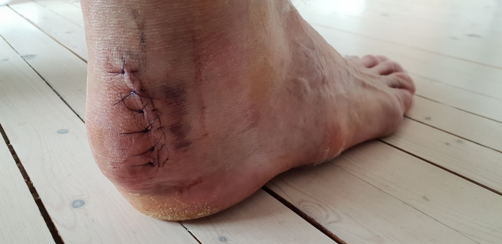 hovne bein etter operasjon