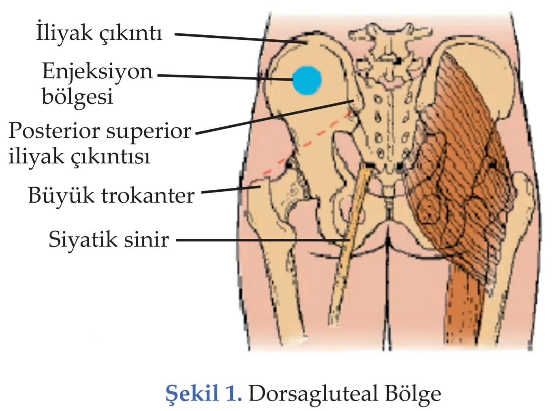 a lábak intradermális visszeressége visszér emberek kezelése