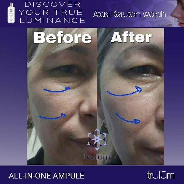 Jual Serum Penghilang Jerawat Trulum Skincare Karas Fakfak