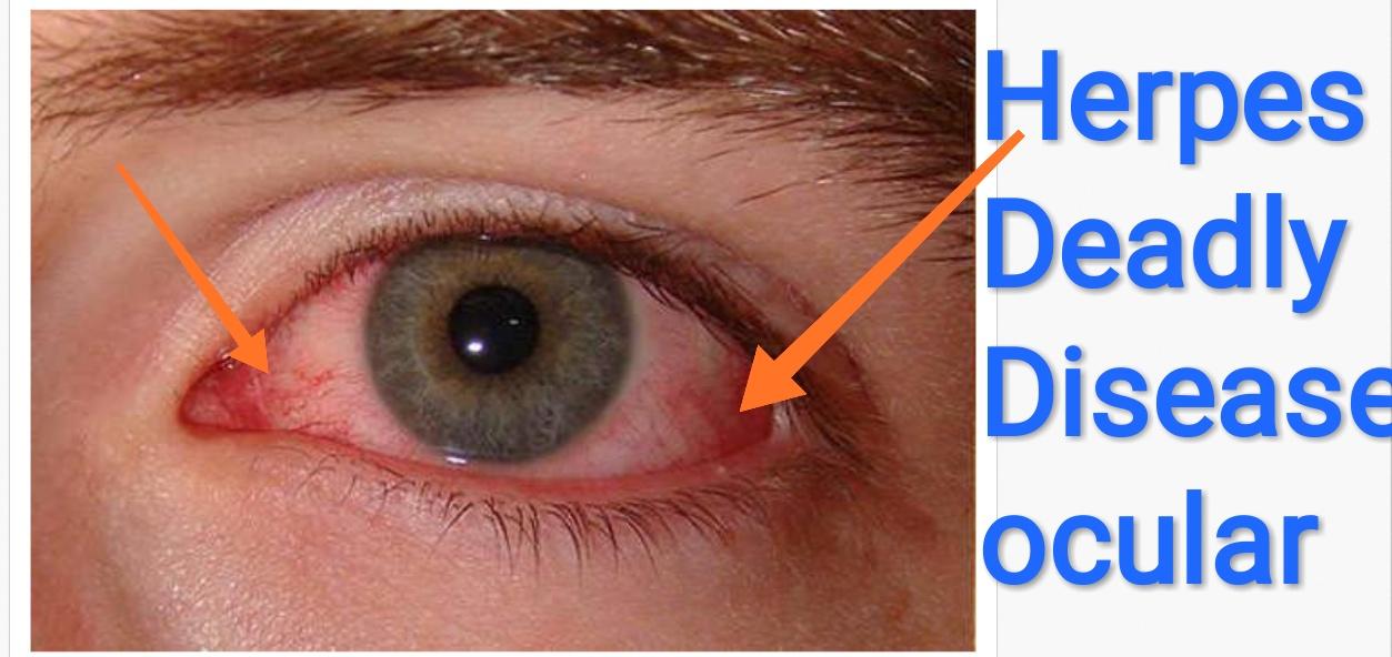 Healthcare & Health solution: Herpes Deadly Disease Ocular