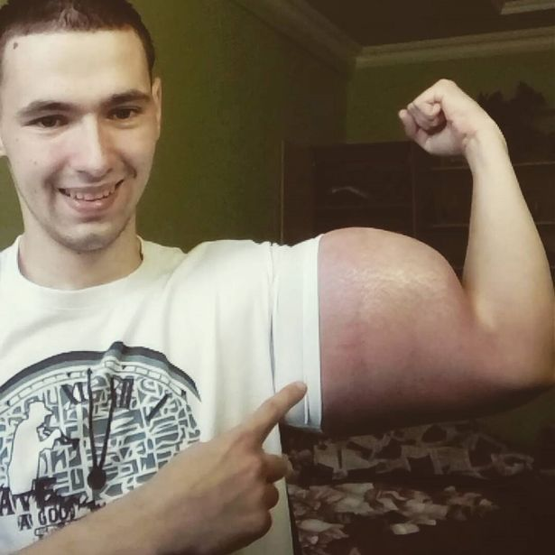 Ex soldier has become famous around the world for his Popeye muscles