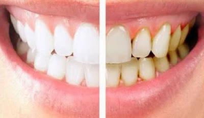 cara hilangkan plak gigi dengan cepat
