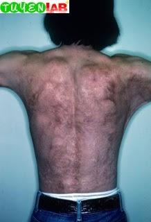 Fig. 3.4 Burn scar.