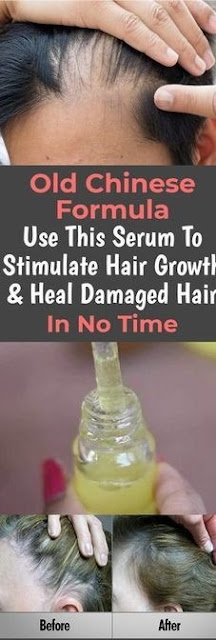 Old Chinese Formula – Use This Serum To Stimulate Hair Growth & Heal Damaged Hair In No Time