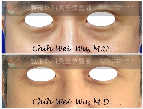 眼袋-%25E6%25BB%2591%25E5%258B%2595033