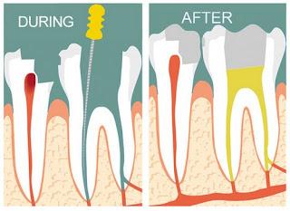 Hàn trám có nên lấy tủy răng không