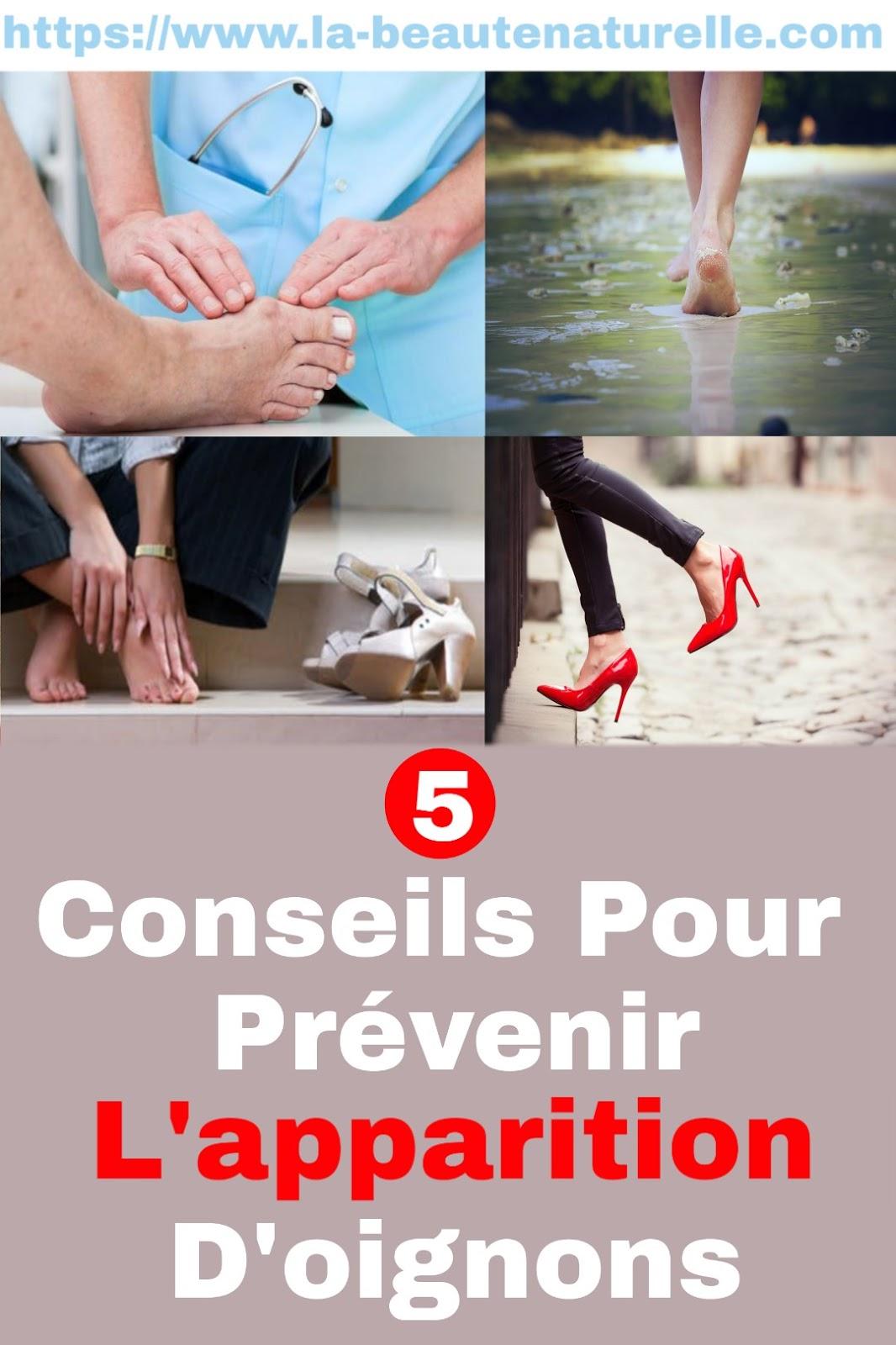 5 Conseils Pour Prévenir L'apparition D'oignons