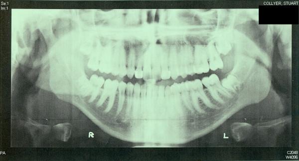 xray of perfect teeth - photo #9