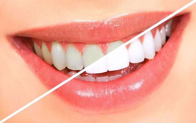 اجعلي اسنانك بيضاء كالثلج