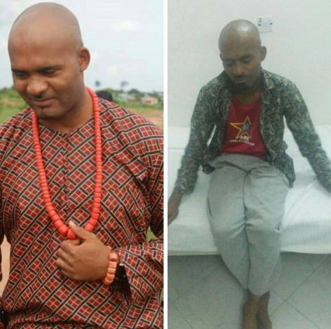 Nollywood actor Leo Mezie down with cancer, needs our help!