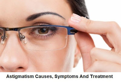 Although astigmatism is one of the most common eye conditions Astigmatism Causes, Symptoms And Treatment