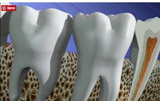 ¿Por qué me duele la endodoncia?