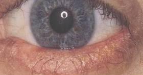 How To Treat EyeLid Mites ~ EyeLash Demodex Mites