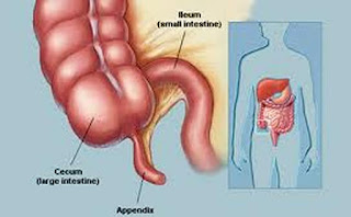 Cancer of the appendix