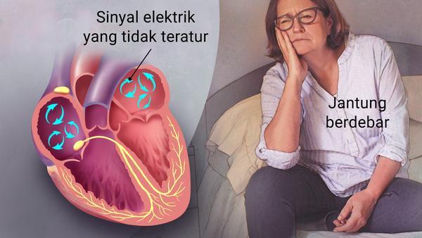 Penyakit Atrial Fibrilation (Afib), Penyakit Jantung Karena Kelelahan