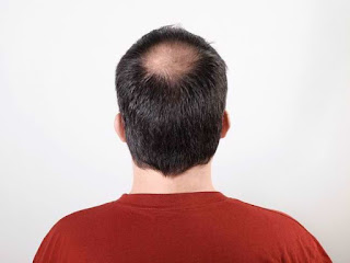 BALDNESS : understanding, symptom, Cause, diagnosis, Treatment and complication