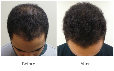 PRP Hair Transplantation: Is PRP Hair Loss Treatment Best Option For