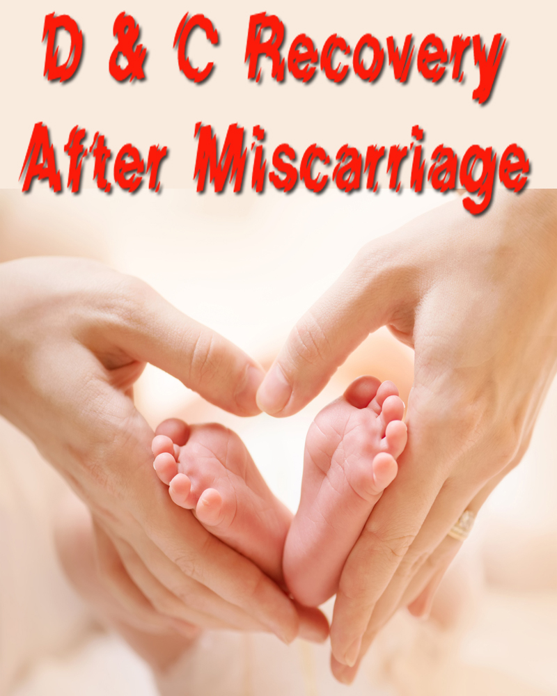 D & C Recovery After Miscarriage
