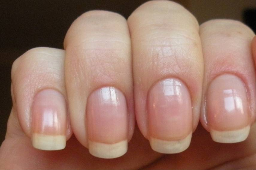 loodie loodie loodie: Do you want shorter nail beds?
