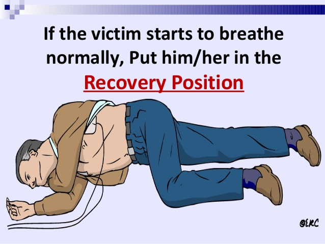 A recovery position is when a person is placed lying down, turned on the side with the head facing sideways.