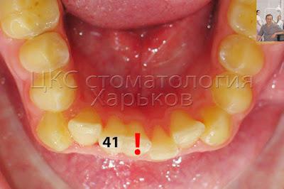 Сверхкомплектный зуб обозначен восклицательным знаком, сросшийся с зубом 41