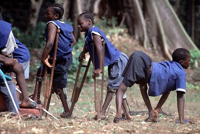 Penderita polio