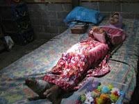 Badannya Kaku Dari Umur 10 Tahun Karena Penyakit Misterius, Wanita ini Tetap Tabah, Kisah Harunya Jadi Viral