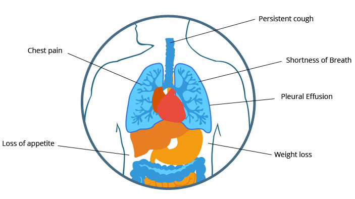 Peritoneal Mesothelioma Signs and Symptoms