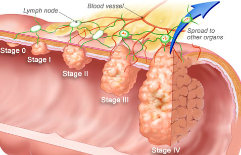 Effective Tips For Dealing Your Colorectal Cancer By Raleigh Colonoscopy
