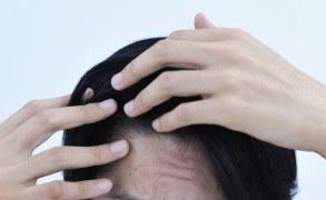 頭皮のべたつきは何が原因?