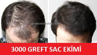 3000 greft saç ekimi fiyatı