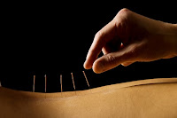 Acupuncture back treatment