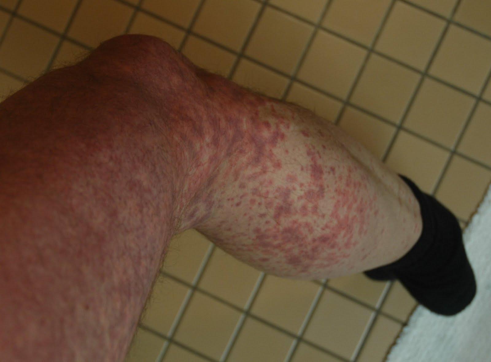 Purplish Skin On Thighs