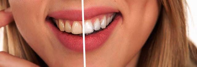 MEDICLI software gestión clínicas dentales Odontología